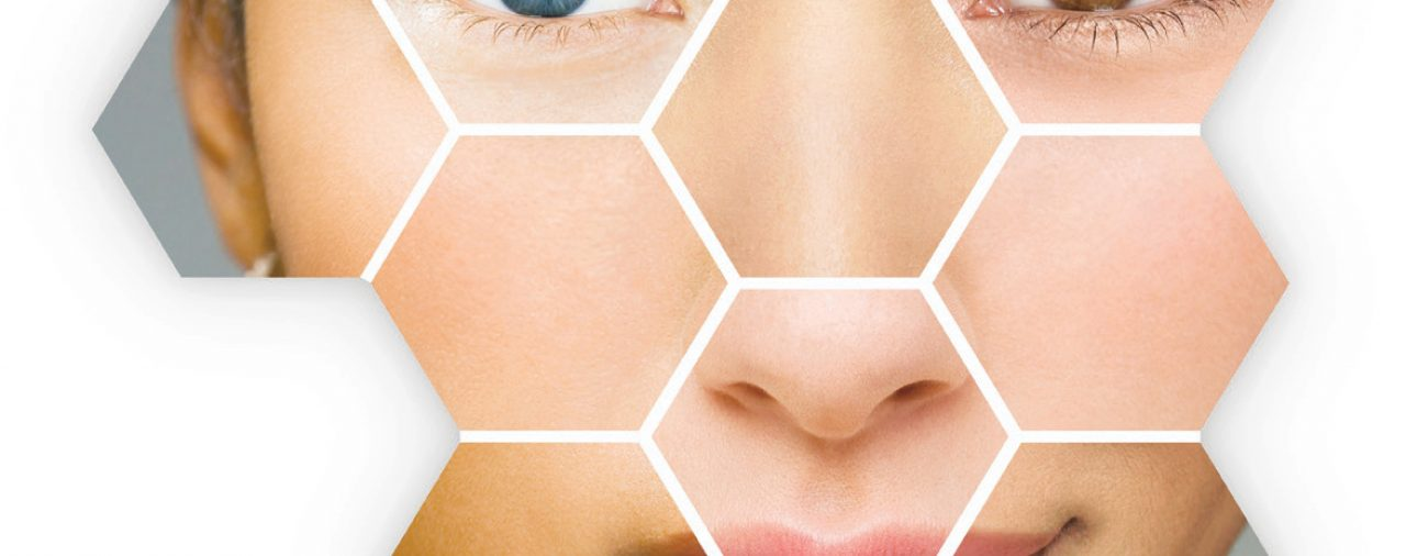 Lees deze blog van Marloes bij Sense huidverbetering!